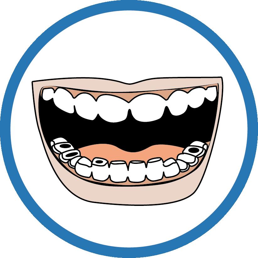 Le dentiste  - La carie