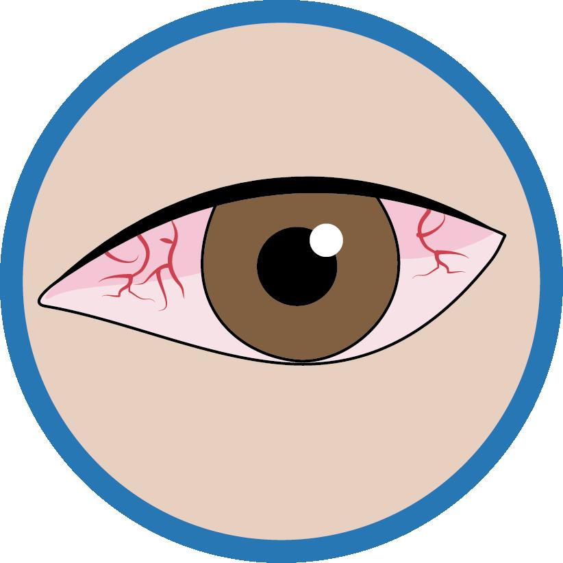 Ophtalmo  - Est-ce que mes yeux sont malades ?