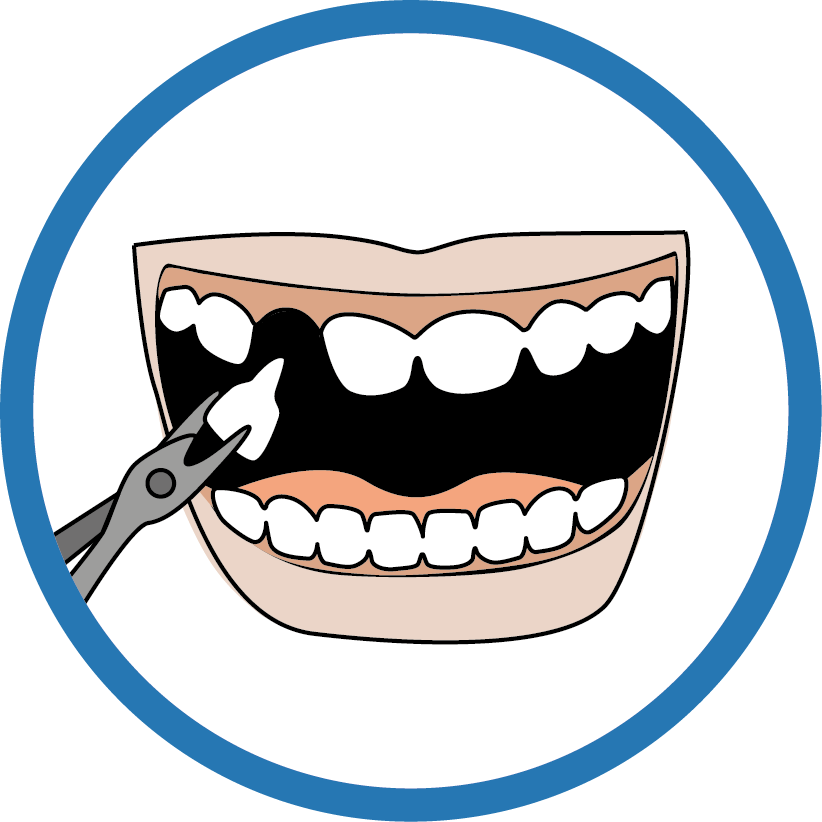 Le dentiste  - Retirer une dent